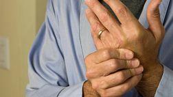 Treat to Target Rheumatoid Arthritis
