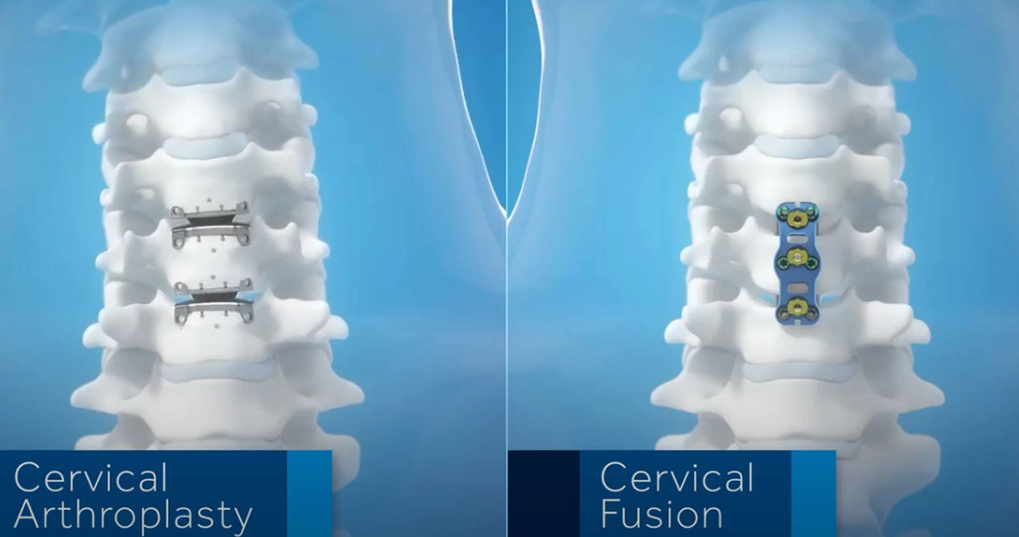 Watch a video about Cervical Arthroplasty Compared to Cervical Fusion