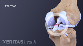 Posterior cruciate rupture in a posterior view of the knee