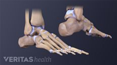 Symptoms of a Foot Stress Fracture