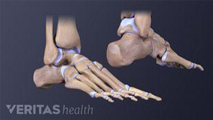 Foot Stress Fracture Bones