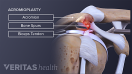 Medical illustration of arthroscopic subacromial decompression surgery. Bone spurs, acormion, bursa, and biceps tendon are labled.