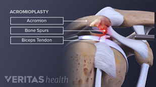 During subacromial decompression surgery creates more space for the shoulder's soft tissue.