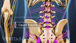Cauda Equina Syndrome in the lumbar spine