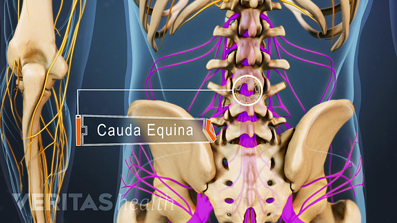 Posterior view of the lower back and pelvis highlighting cauda equina.