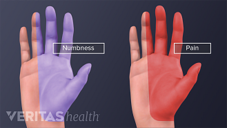 Two hands, with half of each hand highlighted. One shows hand pain, the other numbness