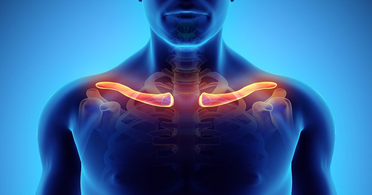 Clavicle Fractures Types And Symptoms