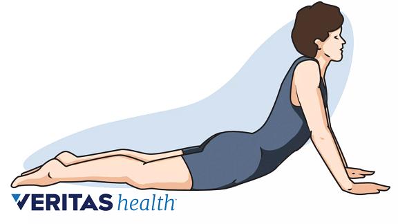 dolor en los muslos por ejercicio