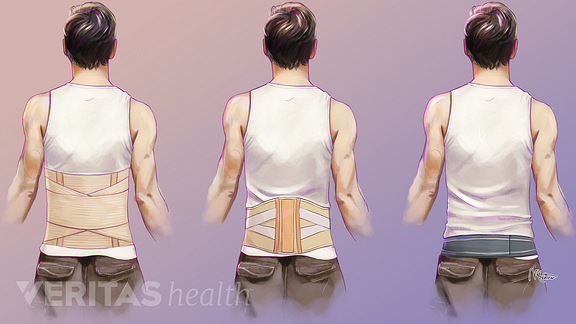 Illustration of corset, lumbar belt, and sacroiliac belt flexible braces for lower back pain