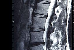 MRI Spine