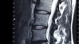 MRI scan of the lumbar spine.