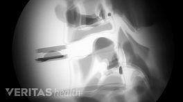 X-ray of the insertion of an artificial disc in the cervical spine