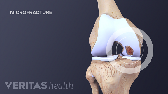 Illustration of microfractures in the knee joint