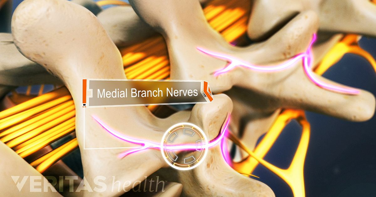 Cervical, Thoracic, and Lumbosacral Medial Branch Nerves