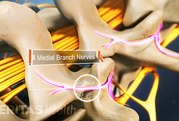 If there is inflammation in the facet joints, the medial branch nerves transmit pain signals to the brain.