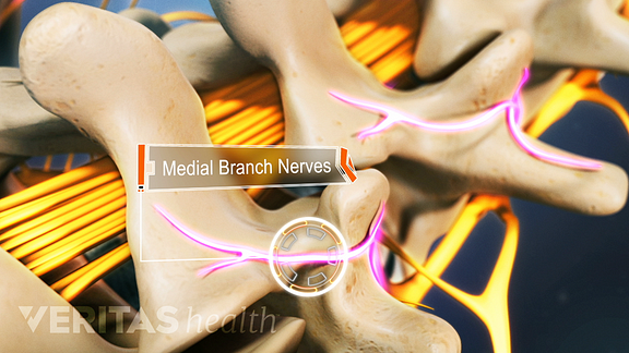 Medial branch nerves coming out between the vertebrae.