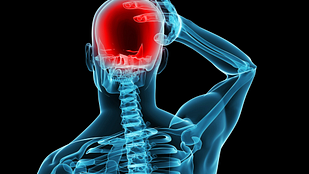Posterior skeleton showing a painful headache.