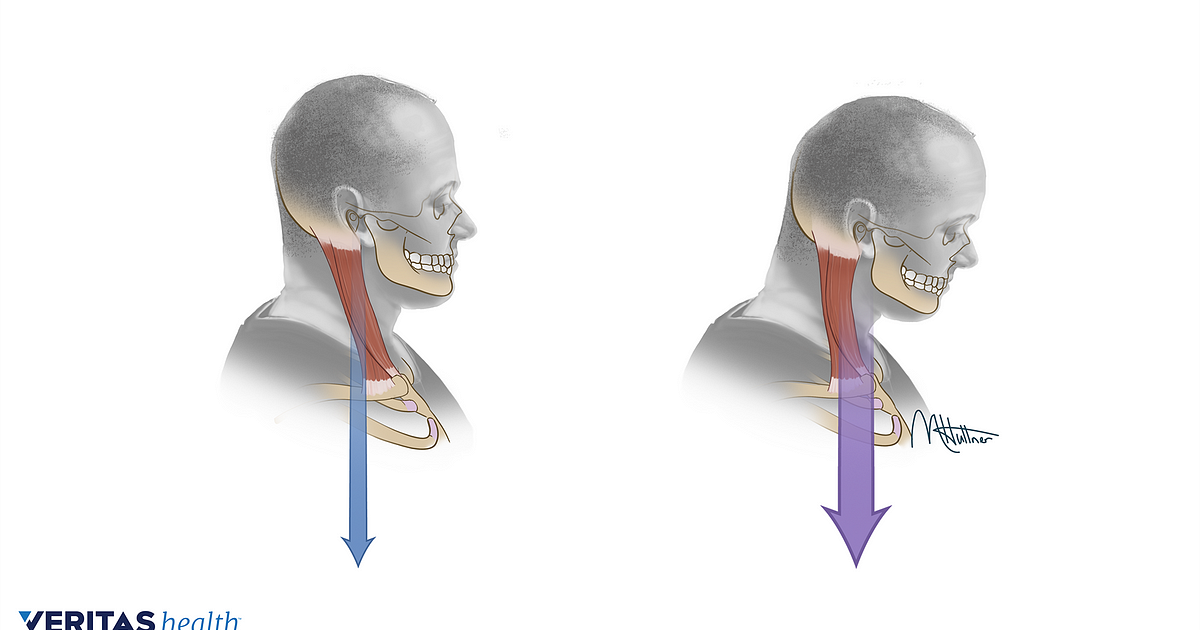 How To Measure And Fix Forward Head Posture