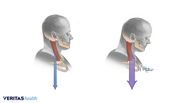 Comparison of good posture and poor posture in the cervical spine.