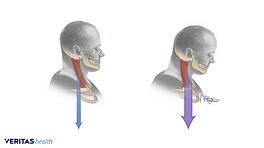 Pproper head posture and forward head posture