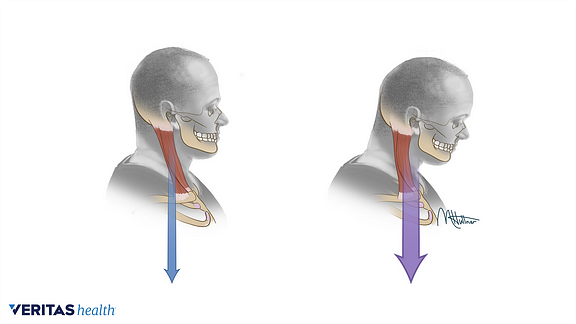 Medical illustration of proper head posture and forward head posture
