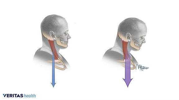 Proper head posture compared with forward head posture
