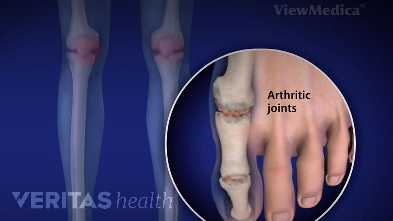 Foot And Ankle Rheumatoid Arthritis Video