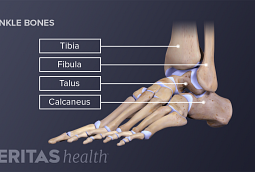 Ankle arthritis typically refers to the joint degeneration between the talus, tibia and fibula.