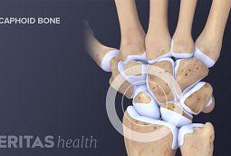 Diagram of carpal bones in the wrist