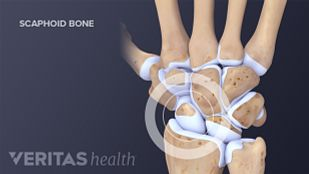 Diagram of carpal bones in the wrist