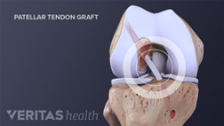 A portion of the patellar tendon is commonly used for an ACL graft