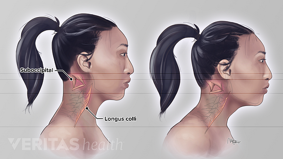 Medical illustration the effect of forward head posture on the longus colli and suboccipital neck muscles