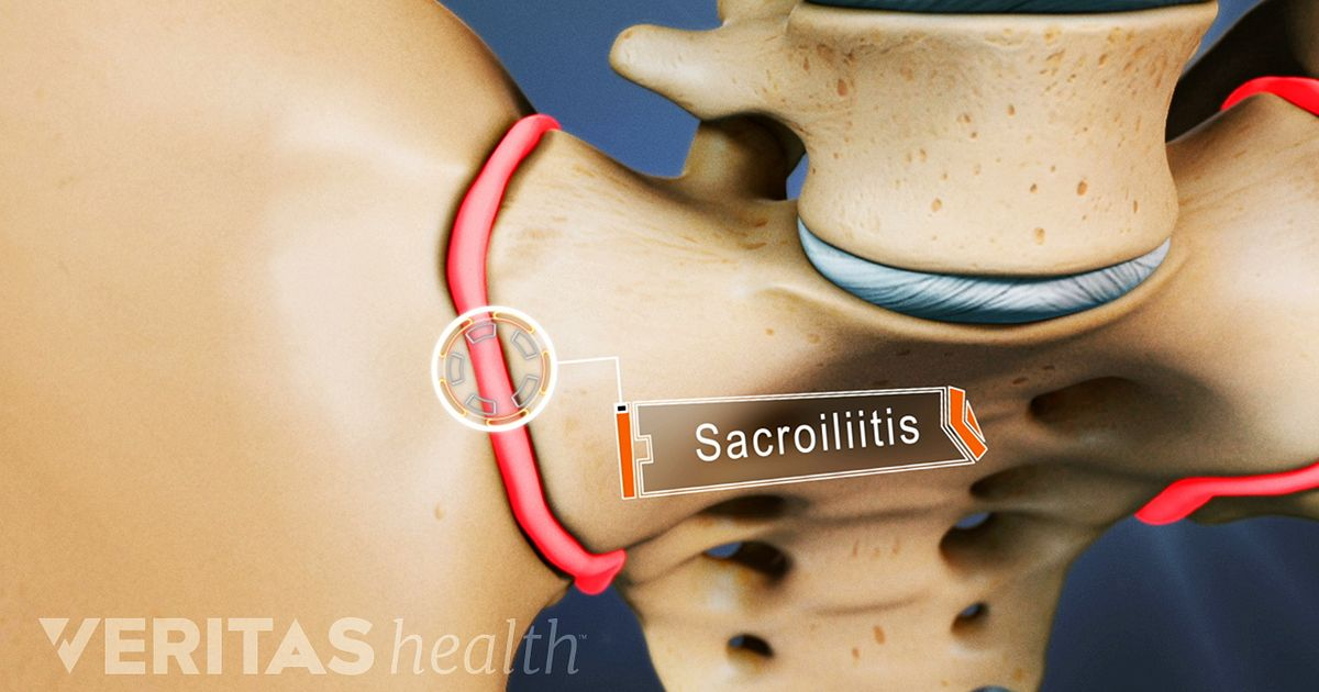 Sacroiliitis Treatment