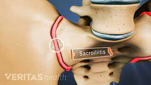 Aggravation of the sacroiliac joint commonly results in inflammation, also called sacroiliitis.