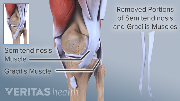 Illustration of hamstring tendon graft bony plugs for ACL repair
