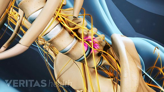 nerve roots