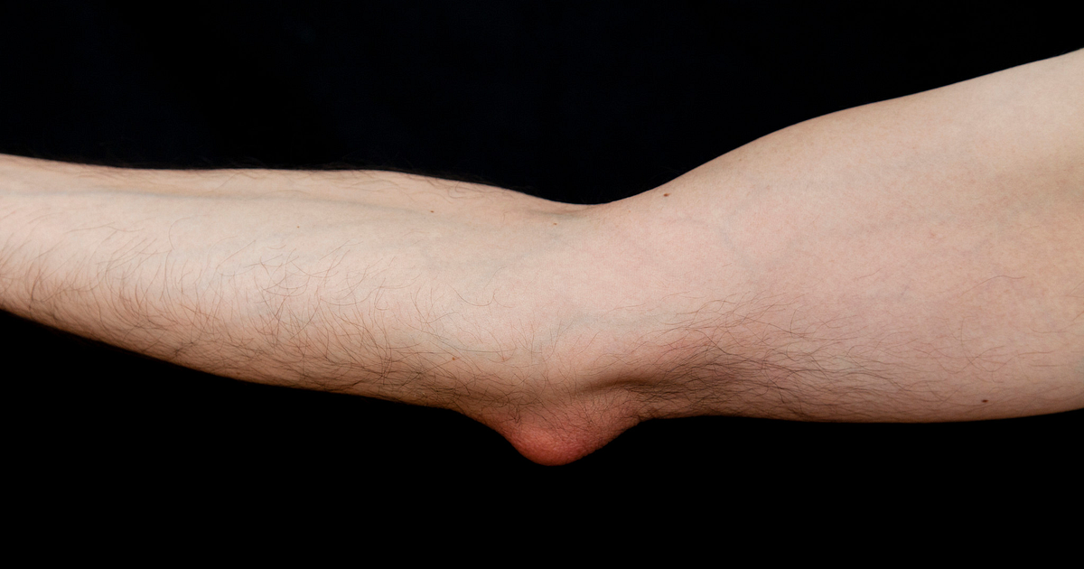 Elbow Olecranon Bursitis Arthritis Health