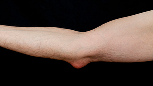 Elbow bursitis can be cause by a single injury, or repeatedly resting weight on the elbow