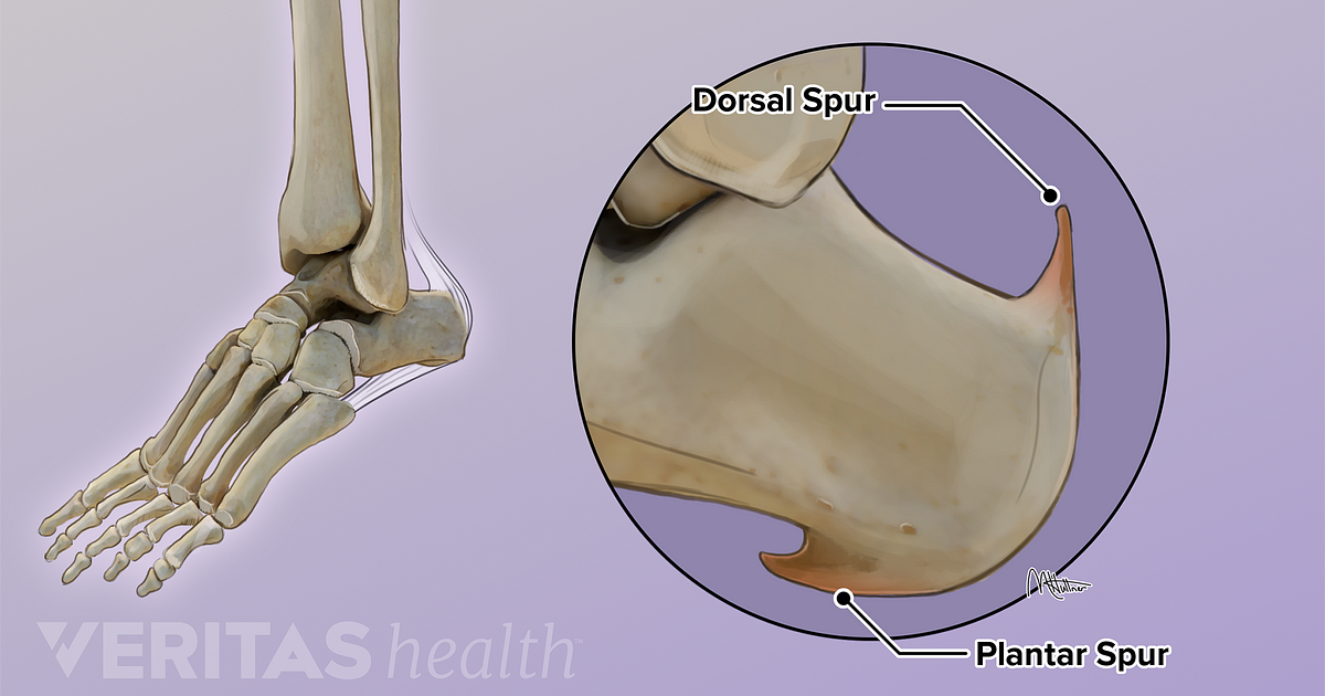 The 2 Common Types Of Heel Spurs