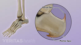 Illustration showing plantar spur and dorsal spur on the heel