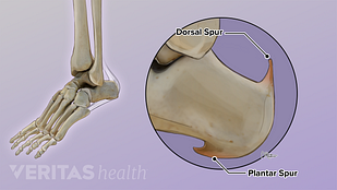 illustration of the two types of heel spurs -- insertional Achilles tendonitis and heel spur syndrome
