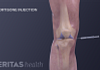 Medical illustration of cortisone being injected into the knee joint.