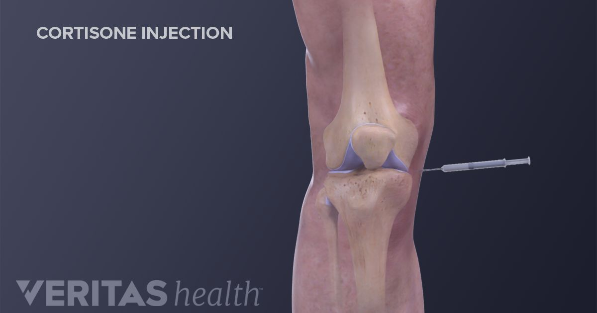 Q Amp A Why Cortisone Injections Can Be Controversial
