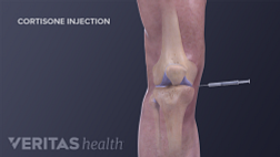 Medical illustration showing an injection going into the knee to treat osteoarthritis