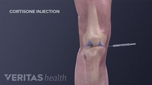 Cortisone Injection