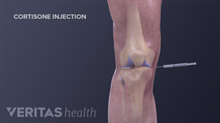 Illustration of cortisone injection into the knee for osteoarthritis treatment