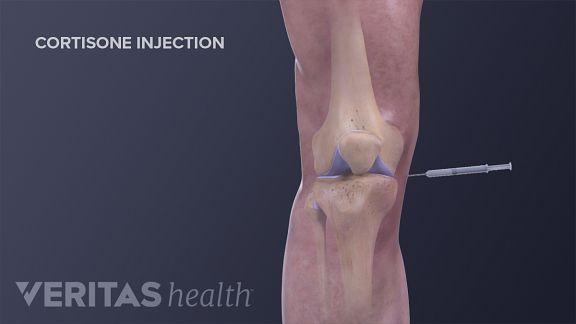 cortisone injection for knee osteoarthritis
