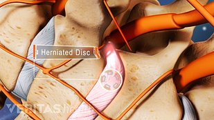 Herniated disc in the cervical spine