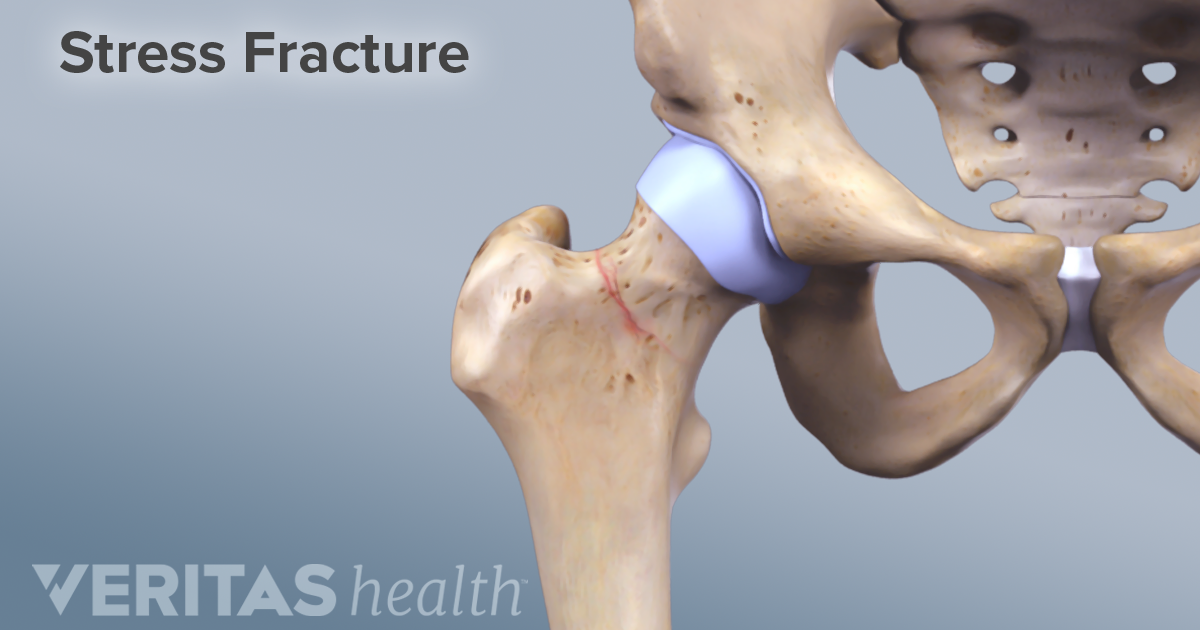 Don T Miss The Signs Of A Stress Fracture