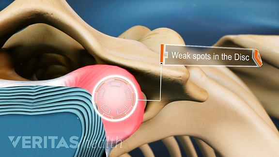Superior view of weak spots in the disc between vertebra.